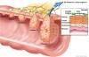 Cáncer de colon, una de las enfermedades más tratables si se detecta temprano